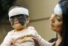 Russia US 'Batman Mask' Birthmark Luna Fenner